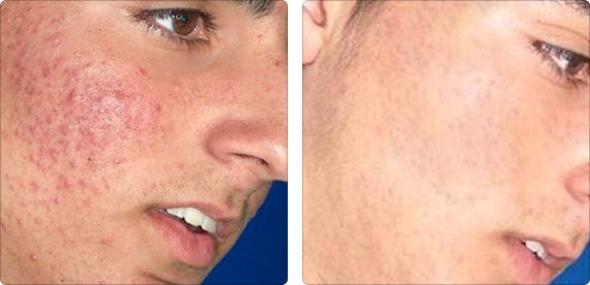 tratamento-acne-espinhas-luz-pulsada-espaco-emmel-curitiba
